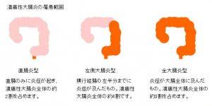 潰瘍性大腸炎